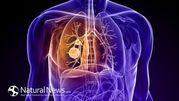 Chế độ ăn uống cho bệnh nhân ung thư phổi