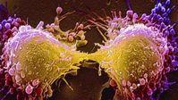 Bạn cần biết 5 giai đoạn của ung thư, để càng phát hiện sớm càng có hy vọng