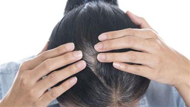 Đừng nghĩ tóc bạc sớm là do máu xấu, có thể bạn đã mắc phải 4 căn bệnh sau rồi