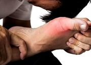 Bài thuốc hay chữa bệnh gout hiệu quả