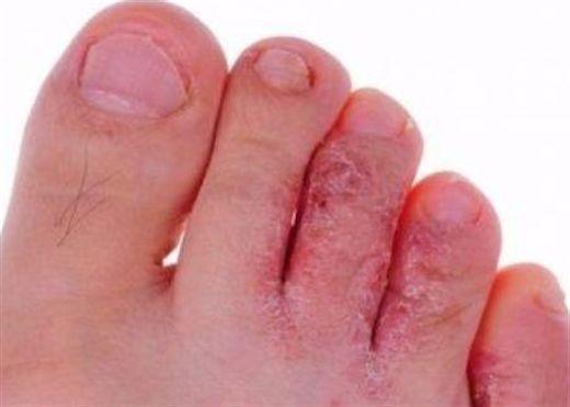 Mẹo trị cước chân tay hiệu quả vào mùa đông