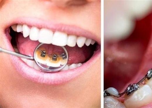 8 sai lầm nghiêm trọng khi chăm sóc răng miệng