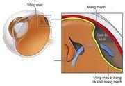 Bong võng mạc- không đau, nhưng có thể gây mù lòa