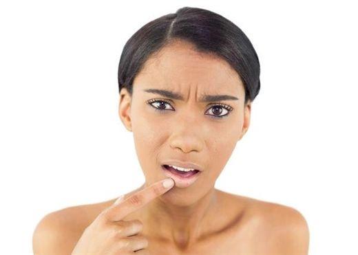 7 tác nhân khiến môi của bạn bị thâm