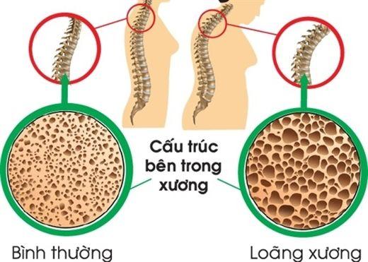 Nguyên nhân và cách điều trị bệnh loãng xương ở người cao tuổi
