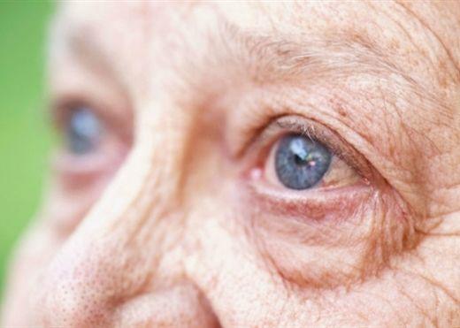 Cẩn thận nguy cơ mù lòa vì THOÁI HÓA ĐIỂM VÀNG