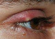 Mẹo chữa CHẮP và LẸO MẮT 'thần tốc' tại nhà không để lại sẹo xấu