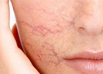 4 sai lầm chị em hay mắc phải khi tẩy tế bào chết khiến làn da dễ bị tàn phá