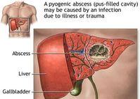 APXE GAN ĐƯỜNG MẬT chủ yếu là do ký sinh trùng gây ra