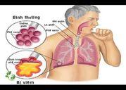 Cách trị viêm phế quản hiệu quả không cần uống thuốc