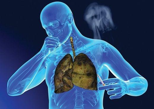 Kiểm tra bàn tay bằng mắt thường phát hiện ung thư phổi