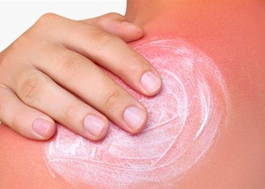 7 cách đơn giản giúp phục hồi hiệu quả làn da bị cháy nắng