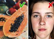 7 thực phẩm tự nhiên lành mạnh giúp giảm sẹo mụn cực kỳ hiệu quả