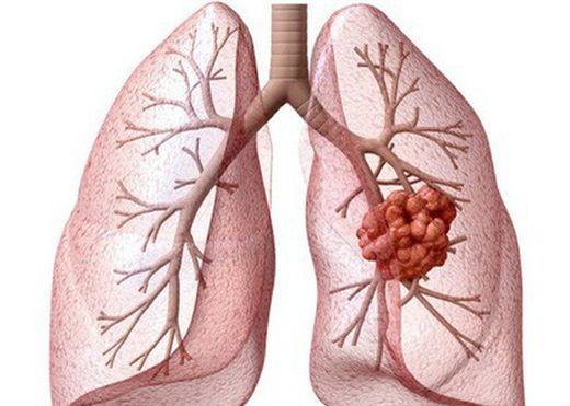 Xuất hiện 1 trong 7 dấu hiệu này, bạn cần phải đi khám ngay vì đó có thể là biểu hiện của ung thư phổi