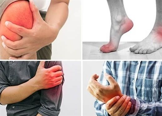 Để viêm khớp không ảnh hưởng đến chất lượng cuộc sống, cần làm gì?