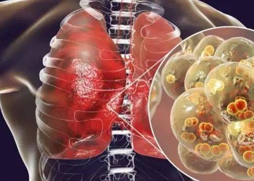 Mùa đông dễ mắc chứng viêm phổi, ăn gì để tránh tình trạng phổi nghiêm trọng này?