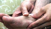Bị tê chân khi ngủ là bệnh gì?