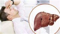 Cách phòng tránh ung thư cho người bị viêm gan B mãn tính