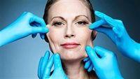 Căng da mặt nội soi - những điều cần biết