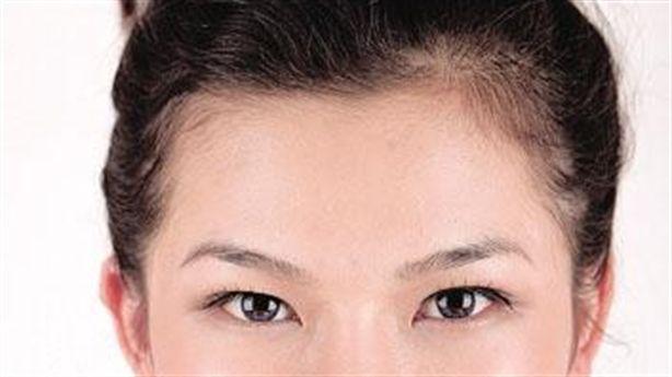 Bí quyết giảm nếp nhăn vùng miệng cho nụ cười tươi trẻ