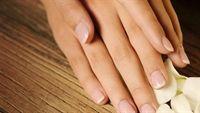 Lột da tay là bệnh gì?