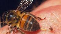 Bạn có thể tử vong vì 1 nốt ong đốt
