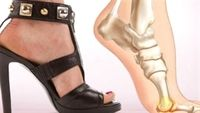 Từ bỏ những thói quen xấu để đôi bàn chân khỏe