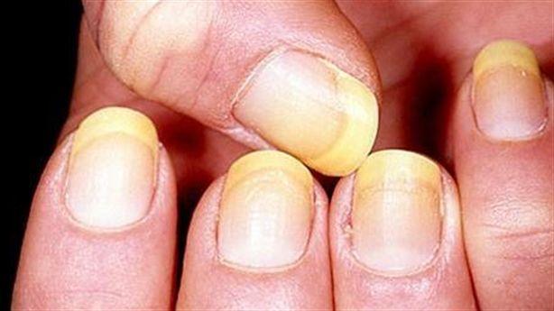 Nhìn màu móng tay cho biết tình hình sức khỏe của bạn
