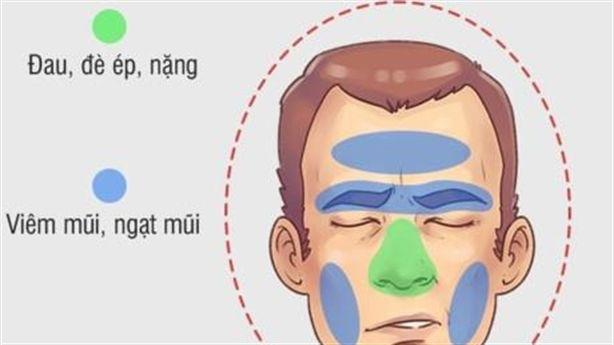 Bí quyết chữa nhanh nhất với 5 kiểu đau đầu thường gặp