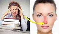6 vị trí mọc mụn trên mặt cho biết điều gì về tình trạng sức khỏe cơ thể bạn?