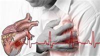 Nhồi máu cơ tim, nguyên nhân do đâu?