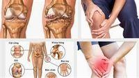 Đau nhức xương khớp - dấu hiệu của những căn bệnh nguy hiểm