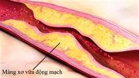 Bạn biết gì về chứng xơ vữa động mạch?
