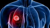 Nuốt nước bọt hôi miệng: triệu chứng ung thư không nên bỏ qua