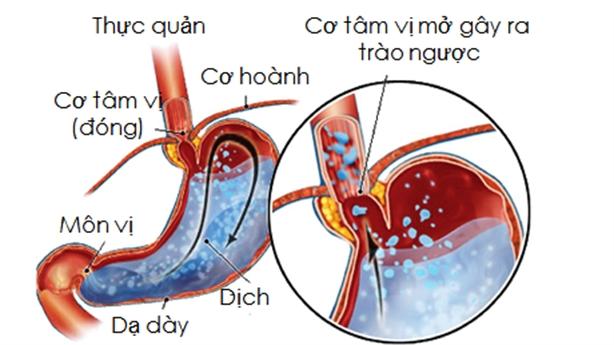 Cách chữa bệnh trào ngược dạ dày thực quản nhanh chóng