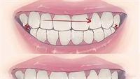 Mẹo chữa nghiến răng bằng đậu đen