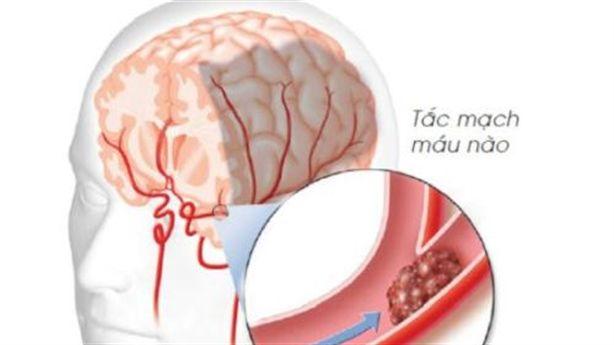 Chuyên gia Nhật tiết lộ cách làm sạch huyết quản giúp con người kéo dài tuổi thọ