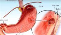 Những điều cần biết về viêm dạ dày ruột cấp tính do virus