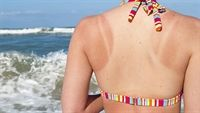 Làn da cháy nắng, đừng nghĩ rằng chỉ là phản ứng ngoài da