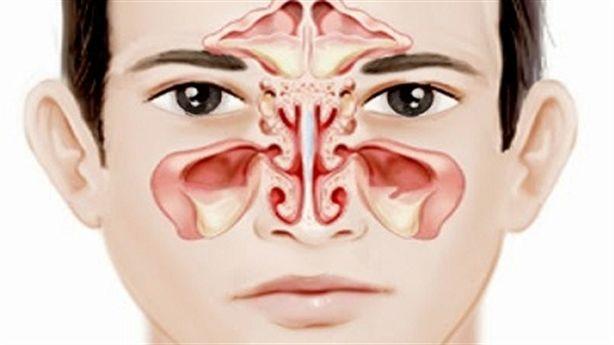 Điều trị viêm đường hô hấp trên thế nào mới hiệu quả?