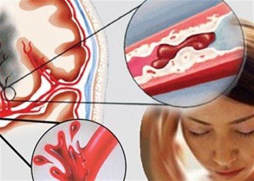 Tai biến mạch máu não và dấu hiệu nhận biết