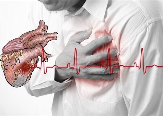 Chìa khoá nào cứu sống người bệnh xơ vữa động mạch?