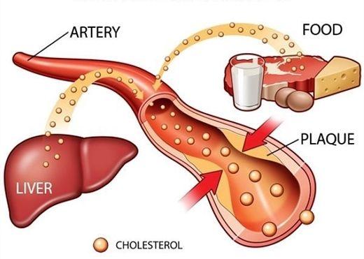 Chế độ sinh hoạt ''điểm 10'' cho người bệnh rối loạn lipid máu