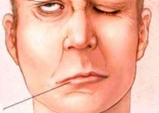 Chảy nước miếng khi ngủ có thể cảnh báo bệnh thần kinh và tiền đột quỵ