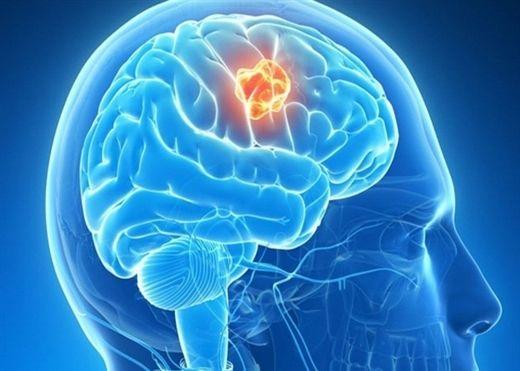 5 dấu hiệu tưởng bình thường nhưng lại cảnh báo trong não có khối u