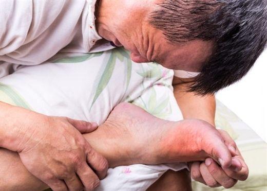 3 lưu ý về sức khỏe cho người bệnh gout trong dịp Tết Nguyên Đán