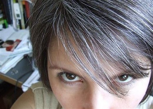 Vì sao tóc bạc sớm xảy ra ở người trẻ?