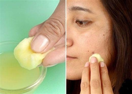 Bạn sẽ nhận được 10 lợi ích kỳ diệu khi dùng nước ép khoai tây mỗi ngày