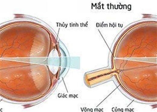 Các bệnh lý về mắt thường gặp
