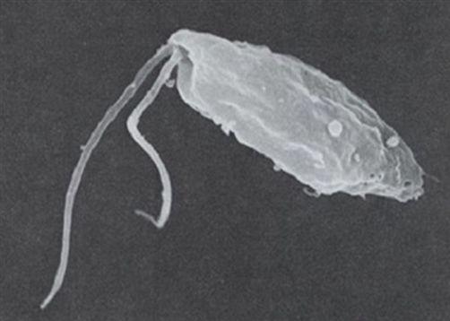 98% tử vong khi bị ký sinh trùng amip tấn công